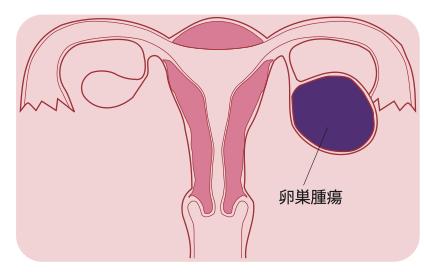 卵巣腫瘍もすべて悪性というわけではなく、良性腫瘍、境界悪性腫瘍、悪性腫瘍の3種類が存在する。