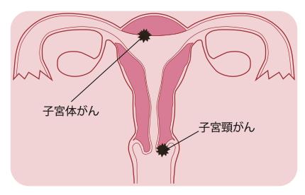 子宮体がんになる年代は比較的高齢ですので、更年期あるいは閉経後の不正出血がある時には特に注意