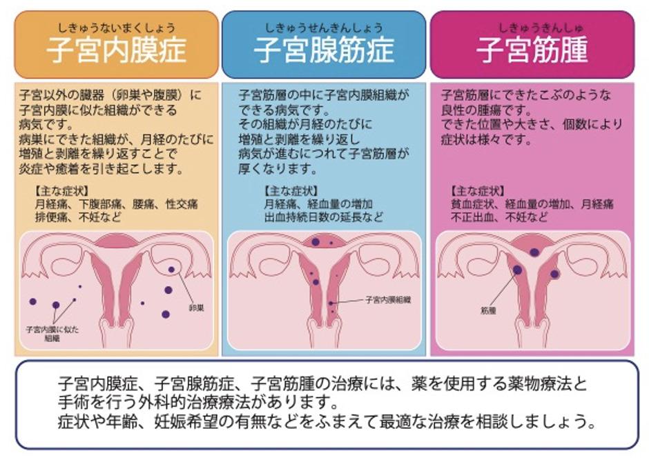 器質性月経困難症の原因となる疾患には、主に子宮内膜症・子宮腺筋症・子宮筋腫の3つがあります。これらの治療には薬物療法と手術を行う外科的治療法があります。